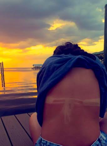 Why it's important to wear sunscreen