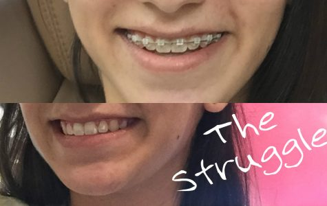 Every teenager eagerly awaits the day they get their braces off.